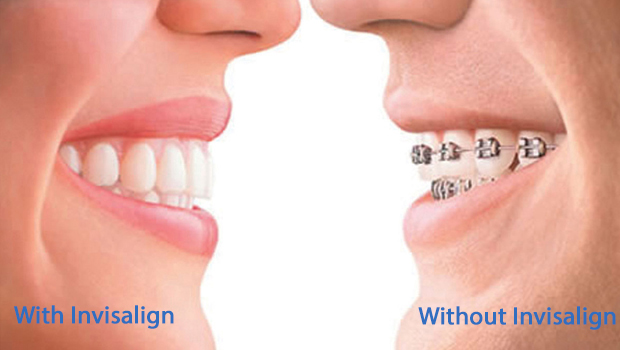 Invisalign in Greenville