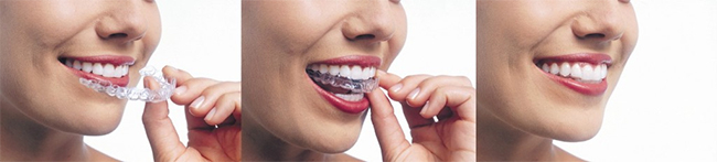 Greenville Invisalign