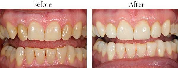 Greenville Dental Images